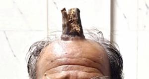 Başını çarptıktan sonra yarası filizlendi. Boynuz oluştu