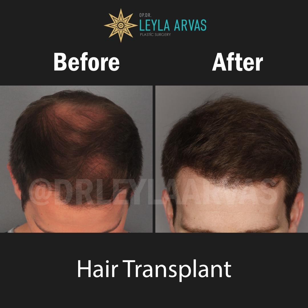 Saç ekimi için uygun musunuz? Ekilen saçlar kalıcı mı? yaptırmadan önce bilgilenelim