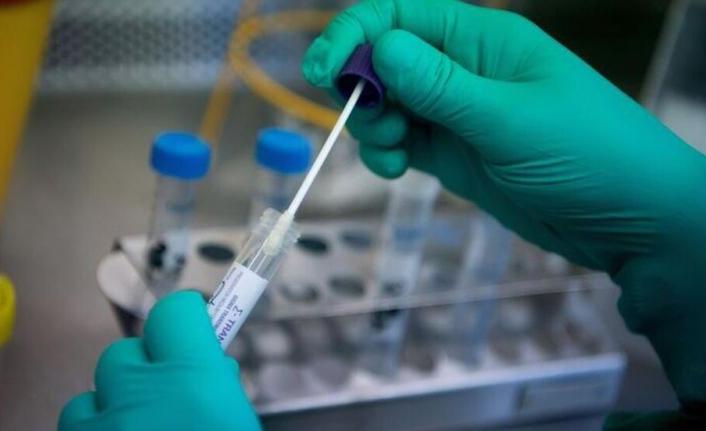 Sayıştay: 9 Liralık PCR Kiti 25 Liradan Alınmış !