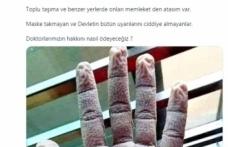 Doktorun elinin görüntüsü sosyal medyada gündem oldu