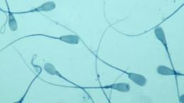 Sperm Üzerinde Koronavirüs Tespit Ettiler