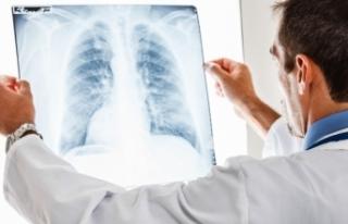 Göğüs röntgeninden hastalık teşhisi yapay zekayla...