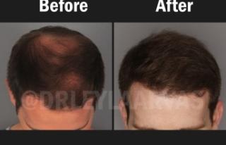 Saç ekimi için uygun musunuz? Ekilen saçlar kalıcı...