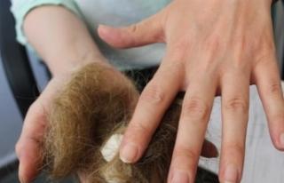 Bu Bir Hemşirenin Saçı Bunu Yapanda Bir Hasta