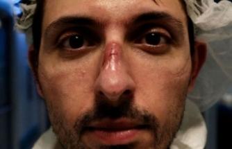 İtalyan Sağlıkçılar: Kahramandık ! Hemen Bizi Unuttular