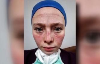 Maske izi onların yüzlerine, fotoğrafları ise Türkiye'nin yüreklerine kazındı