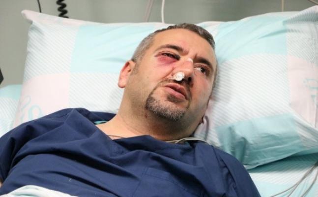 Sağlıkçıyı Bu Hale Getiren Kişi Tutuklandı