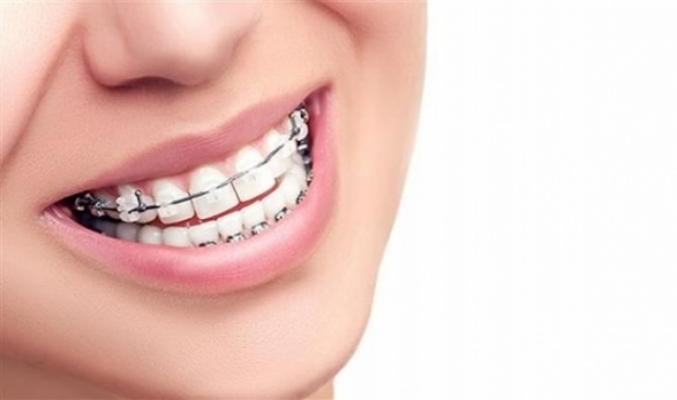 Diş Telleri Hakkında Doğru Bilinen Yanlışlar