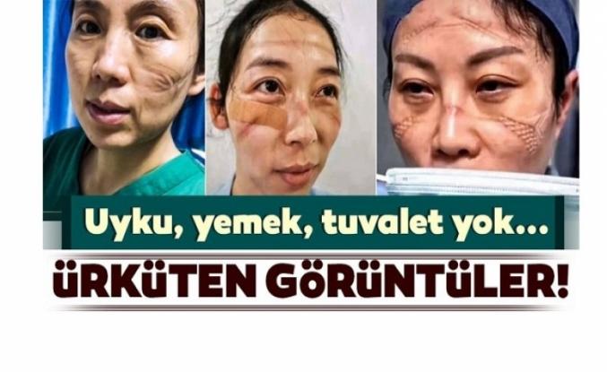 Çin'de ki Sağlıkçıların Son Hali / Foto Haber