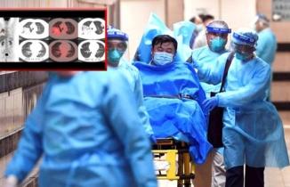 Çin'li adamın röntgen fotoğrafları ortaya çıktı